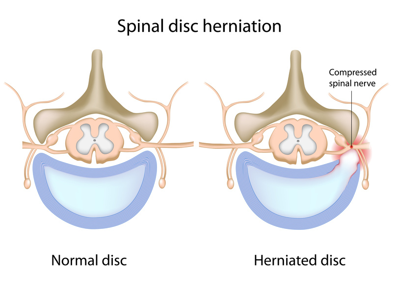 chiropractic for disc herniation